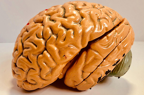 The Surgical Complication That Can Damage Your Brain