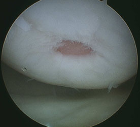 Damaged cartilage before microfracture
