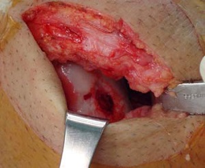 Shows incision used in ACI surgery