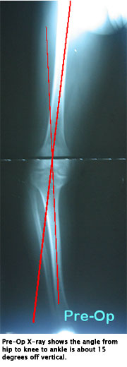 Standing X-ray Pre-op
