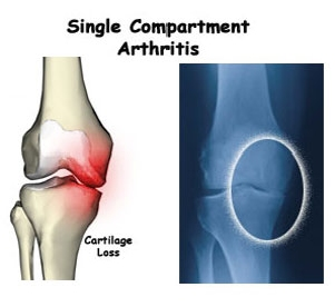 Uni knee replacement chicago knee arthroplasty glenview prp unicompartmental arthritis description of the knees three compartments publicscrutiny Image collections